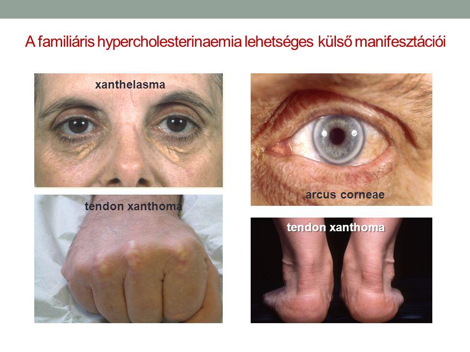 A familiáris hypercholesterinaemia lehetséges külső manifesztációi xanthelasma arcus corneae tendon xanthoma