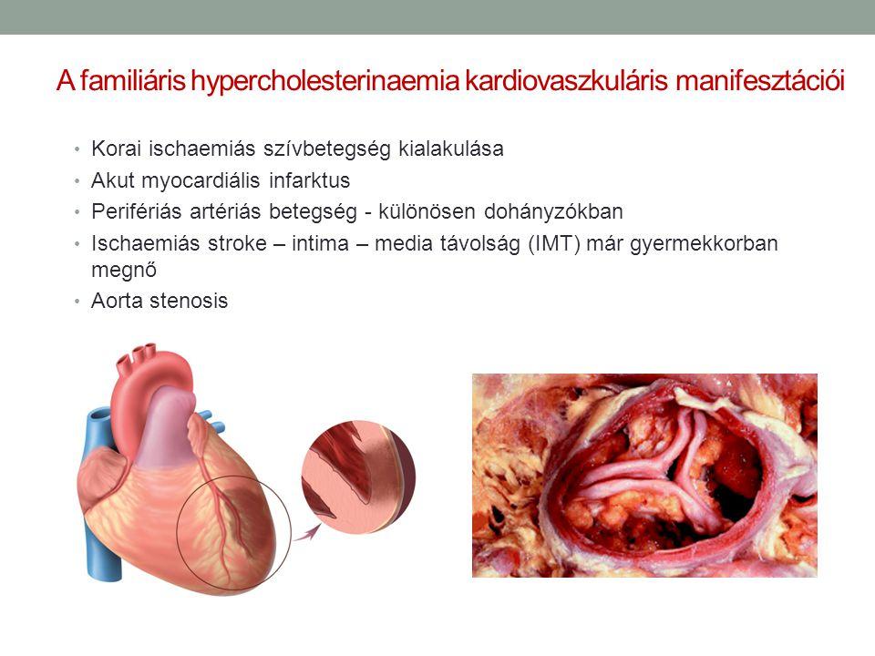 A familiáris hypercholesterinaemia kardiovaszkuláris manifesztációi Korai ischaemiás szívbetegség kialakulása Akut myocardiális infarktus Perifériás a