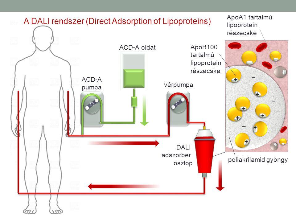 ACD-A oldat ACD-A pumpa vérpumpa DALI adszorber oszlop + + + + + + + _ _ _ _ _ _ _ ApoB100 tartalmú lipoprotein részecske poliakrilamid gyöngy ApoA1 t