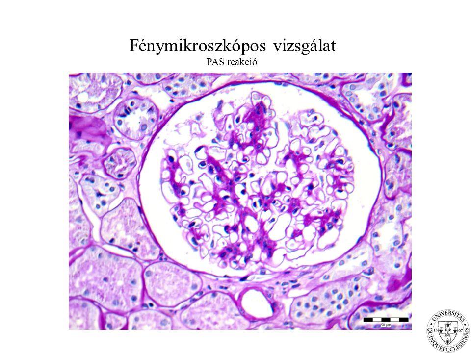 Fénymikroszkópos vizsgálat PAS reakció