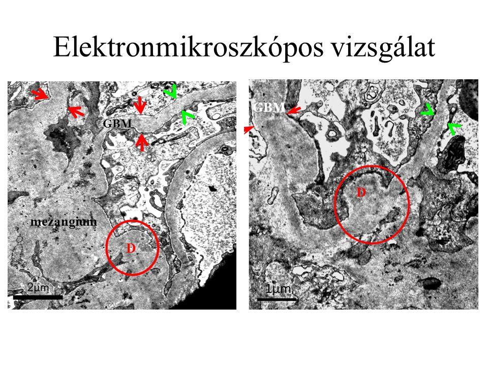 Elektronmikroszkópos vizsgálat D D mezangium GBM
