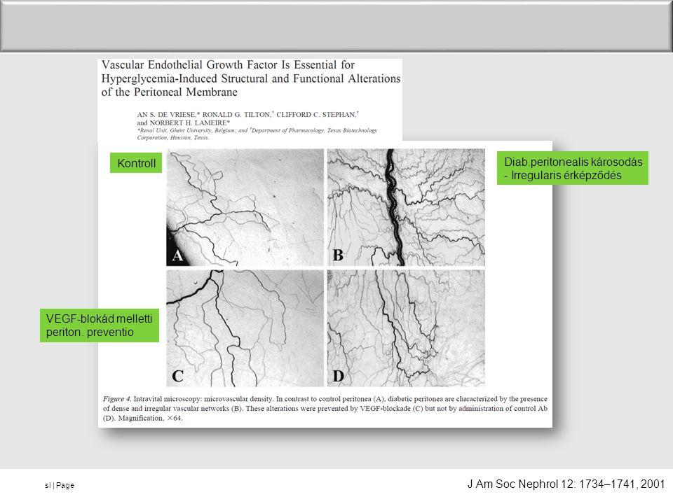 sl   Page Kontroll Diab.peritonealis károsodás - Irregularis érképződés VEGF-blokád melletti periton. preventio J Am Soc Nephrol 12: 1734–1741, 2001