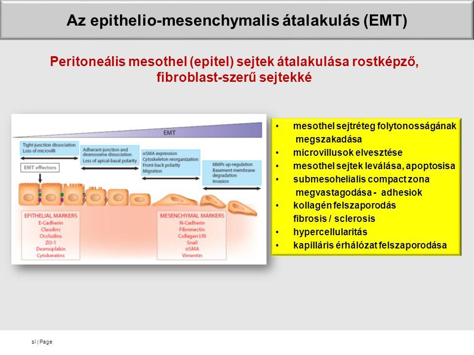 sl | Page Az epithelio-mesenchymalis átalakulás (EMT) mesothel sejtréteg folytonosságának megszakadása microvillusok elvesztése mesothel sejtek leválása, apoptosisa submesohelialis compact zona megvastagodása - adhesiok kollagén felszaporodás fibrosis / sclerosis hypercellularitás kapilláris érhálózat felszaporodása Peritoneális mesothel (epitel) sejtek átalakulása rostképző, fibroblast-szerű sejtekké