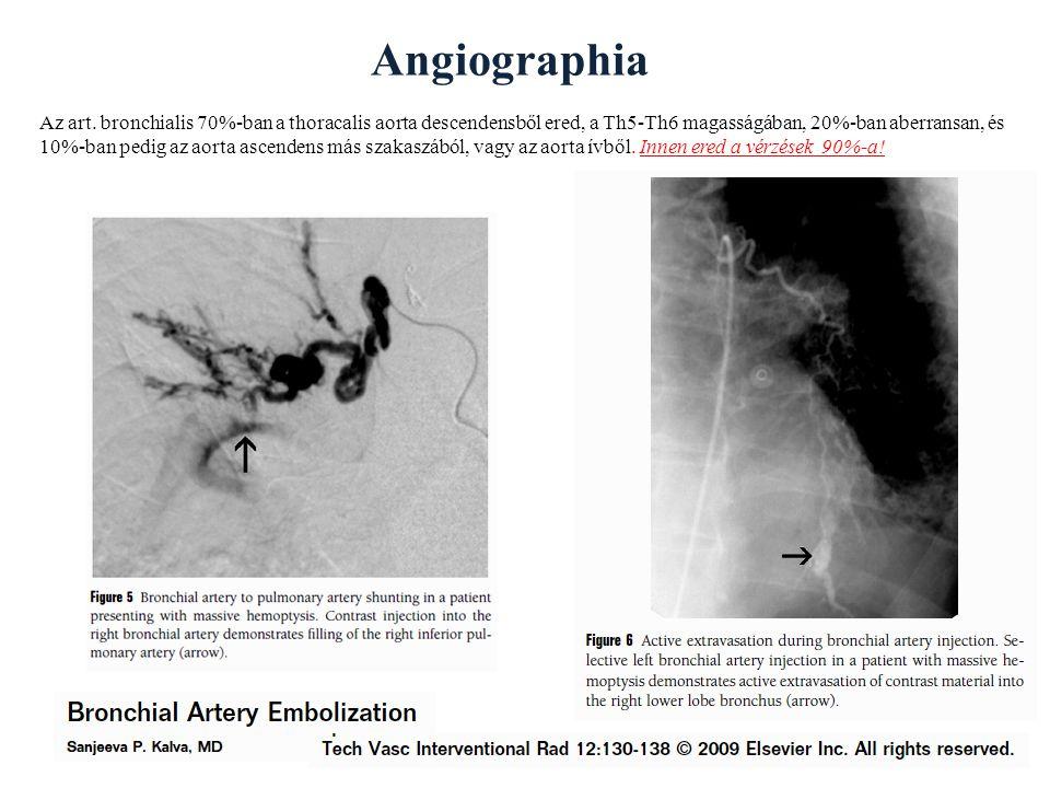 Angiographia Az art.