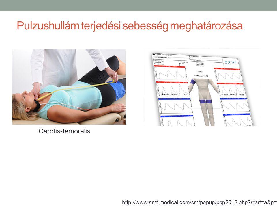 Pulzushullám terjedési sebesség meghatározása http://www.smt-medical.com/smtpopup/ppp2012.php?start=a&p=3 Carotis-femoralis
