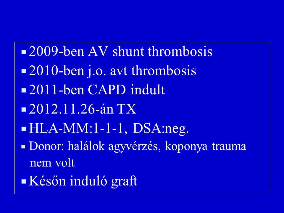  2009-ben AV shunt thrombosis  2010-ben j.o.