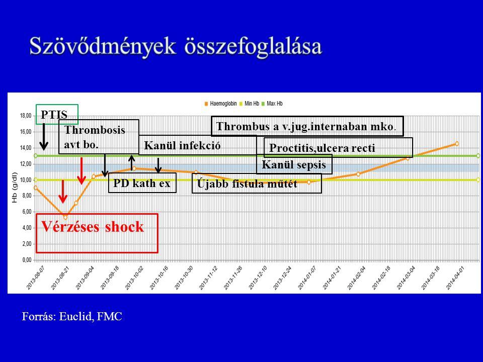 Vérzéses shock PTIS Thrombosis avt bo. PD kath ex Kanül infekció Újabb fistula műtét Proctitis,ulcera recti Kanül sepsis Thrombus a v.jug.internaban m