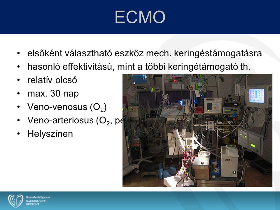 ECMO elsőként választható eszköz mech. keringéstámogatásra hasonló effektivitású, mint a többi keringétámogató th. relatív olcsó max. 30 nap Veno-veno