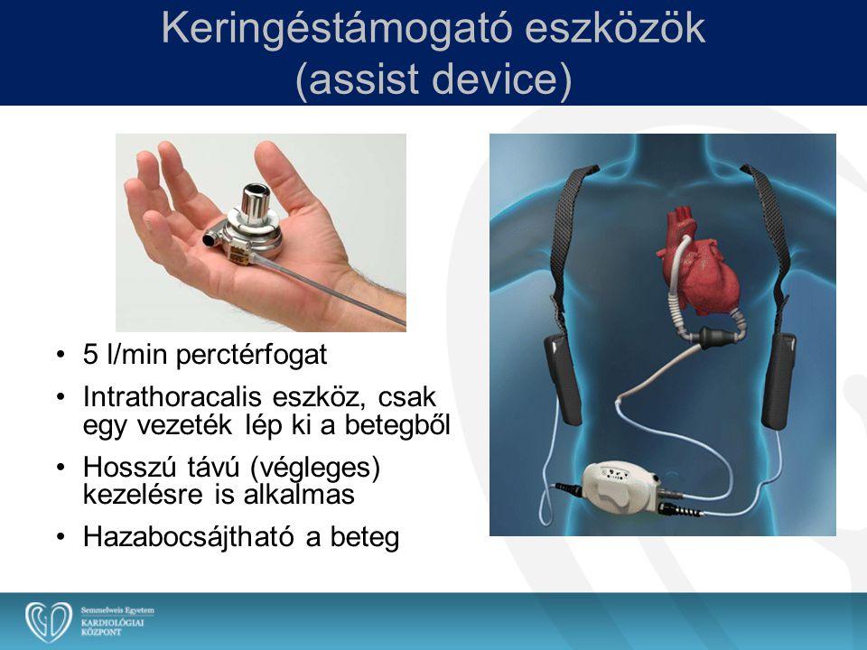 Keringéstámogató eszközök (assist device) 5 l/min perctérfogat Intrathoracalis eszköz, csak egy vezeték lép ki a betegből Hosszú távú (végleges) kezel