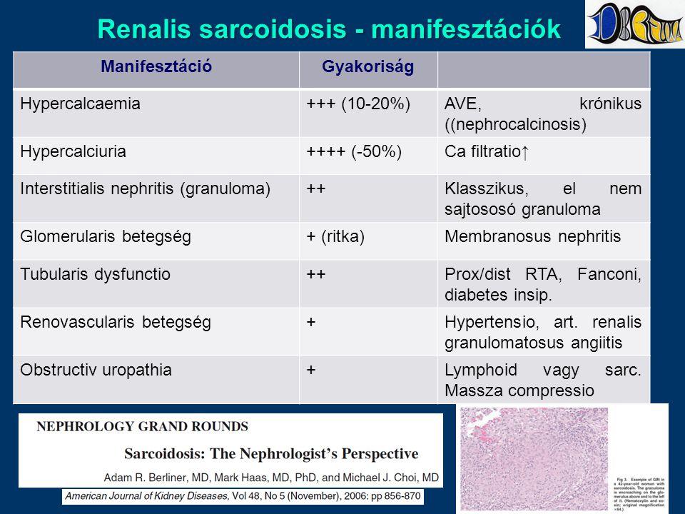 Renalis sarcoidosis - manifesztációk ManifesztációGyakoriság Hypercalcaemia+++ (10-20%)AVE, krónikus ((nephrocalcinosis) Hypercalciuria++++ (-50%)Ca filtratio↑ Interstitialis nephritis (granuloma)++Klasszikus, el nem sajtososó granuloma Glomerularis betegség+ (ritka)Membranosus nephritis Tubularis dysfunctio++Prox/dist RTA, Fanconi, diabetes insip.