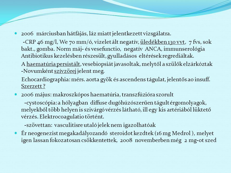 2006 márciusban hátfájás, láz miatt jelentkezett vizsgálatra. -CRP 46 mg/l, We 70 mm/ó, vizelet ált negatív, üledékben 130 vvt, 7 fvs, sok bakt., gomb