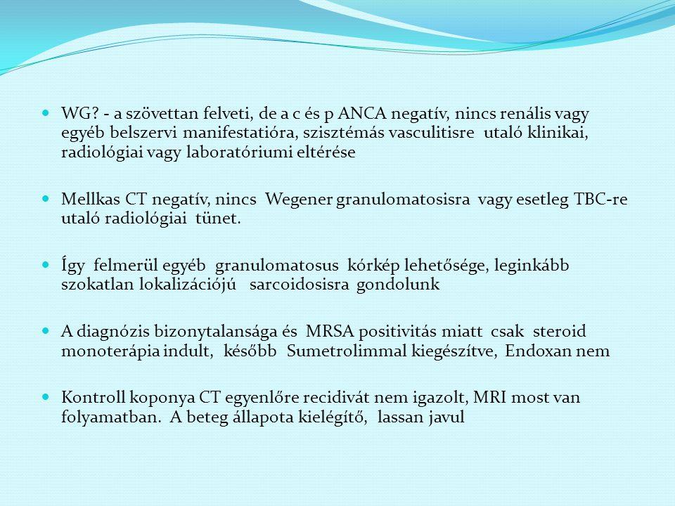 WG? - a szövettan felveti, de a c és p ANCA negatív, nincs renális vagy egyéb belszervi manifestatióra, szisztémás vasculitisre utaló klinikai, radiol