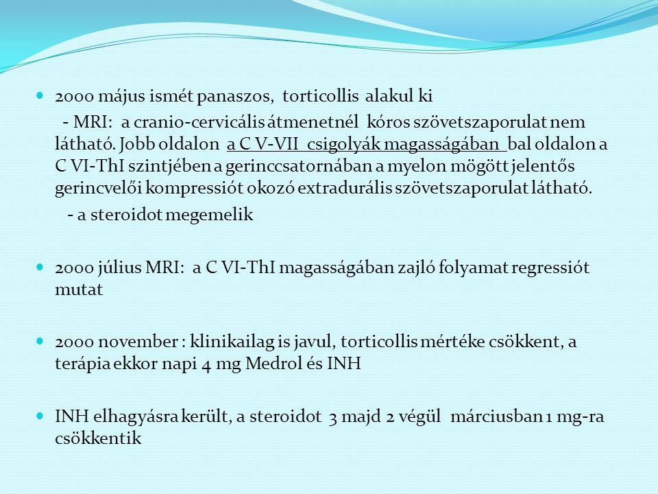 2000 május ismét panaszos, torticollis alakul ki - MRI: a cranio-cervicális átmenetnél kóros szövetszaporulat nem látható. Jobb oldalon a C V-VII csig