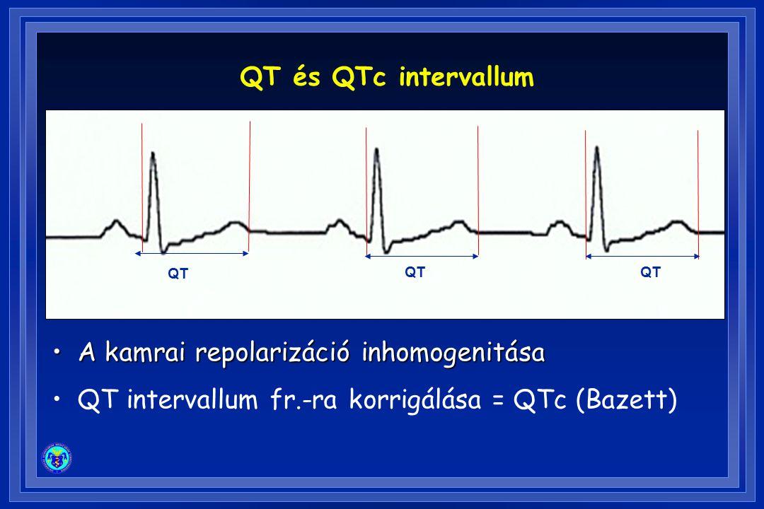 QT és QTc intervallum A kamrai repolarizáció inhomogenitásaA kamrai repolarizáció inhomogenitása QT intervallum fr.-ra korrigálása = QTc (Bazett) QT