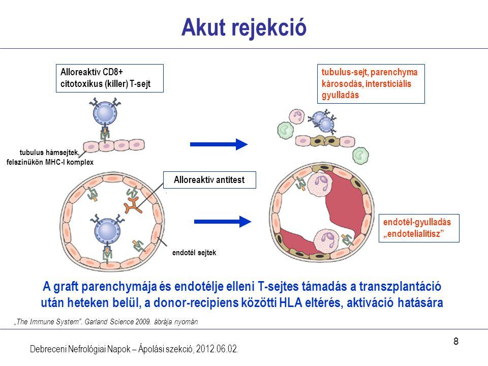 8 Akut rejekció Debreceni Nefrológiai Napok – Ápolási szekció, 2012.06.02. Alloreaktív CD8+ citotoxikus (killer) T-sejt tubulus hámsejtek, felszínükön