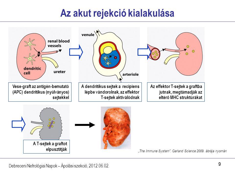 10 Krónikus allograft nefropátia - CAN Debreceni Nefrológiai Napok – Ápolási szekció, 2012.06.02.
