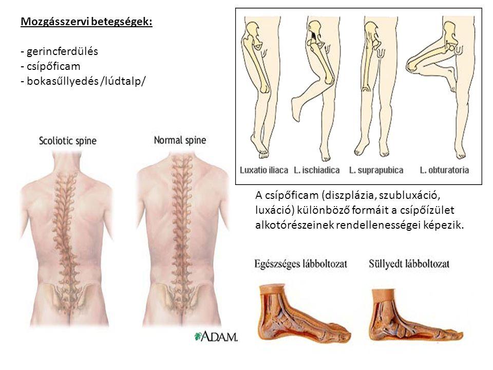 Mozgásszervi betegségek: - gerincferdülés - csípőficam - bokasűllyedés /lúdtalp/ A csípőficam (diszplázia, szubluxáció, luxáció) különböző formáit a csípőízület alkotórészeinek rendellenességei képezik.