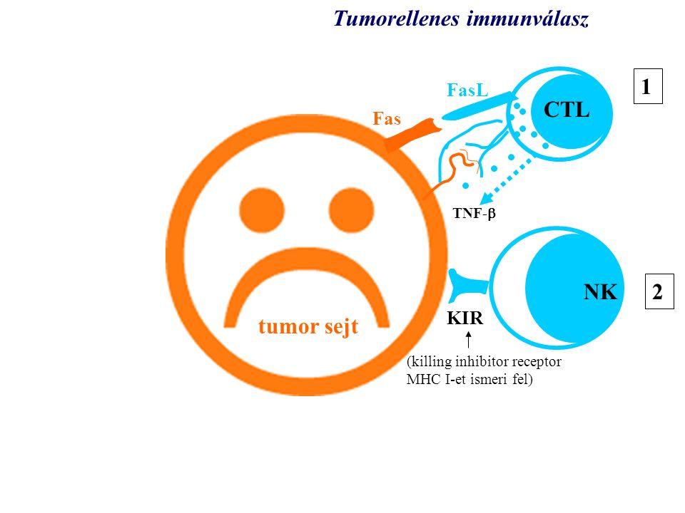 tumor tumor sejt KIR TNF-  CTL NK Tumorellenes immunválasz 1 2 Fas FasL (killing inhibitor receptor MHC I-et ismeri fel)