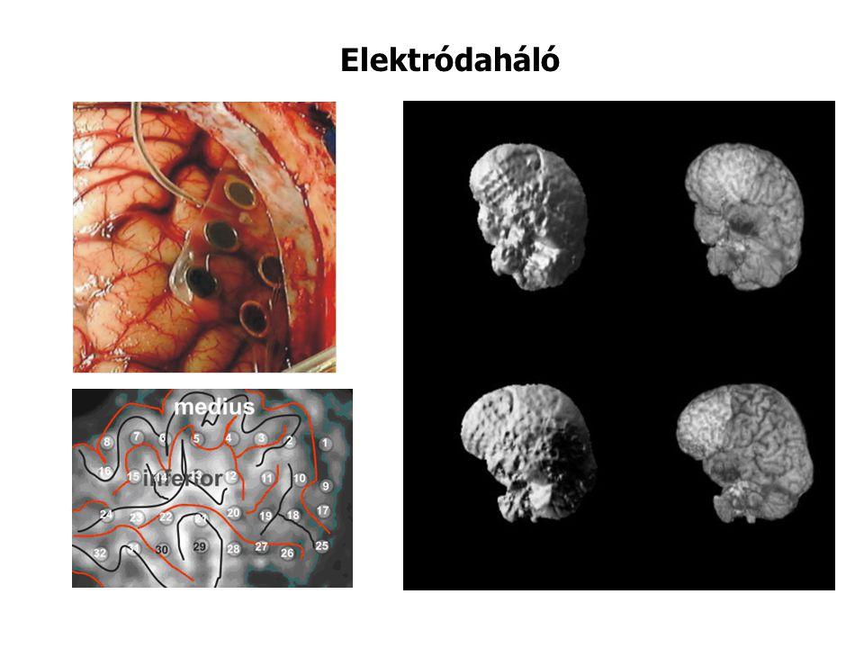 Elektródaháló