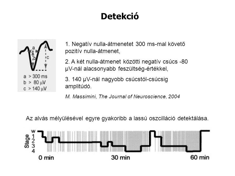 Detekció 1. Negatív nulla-átmenetet 300 ms-mal követő pozitív nulla-átmenet, 2. A két nulla-átmenet közötti negatív csúcs -80 μV-nál alacsonyabb feszü