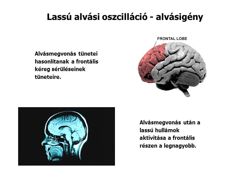 Lassú alvási oszcilláció - alvásigény Alvásmegvonás tünetei hasonlítanak a frontális kéreg sérüléseinek tüneteire.