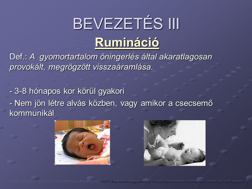 BEVEZETÉS III Rumináció Def.: A gyomortartalom öningerlés által akaratlagosan provokált, megrögzött visszaáramlása. - 3-8 hónapos kor körül gyakori -