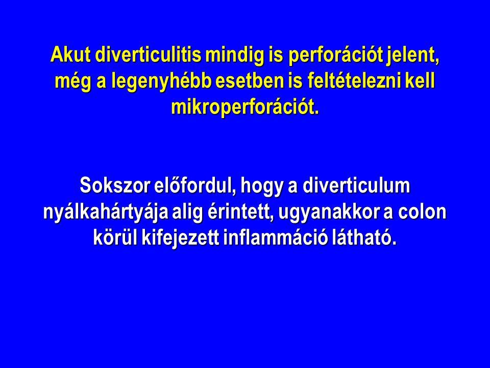 Akut diverticulitis mindig is perforációt jelent, még a legenyhébb esetben is feltételezni kell mikroperforációt.