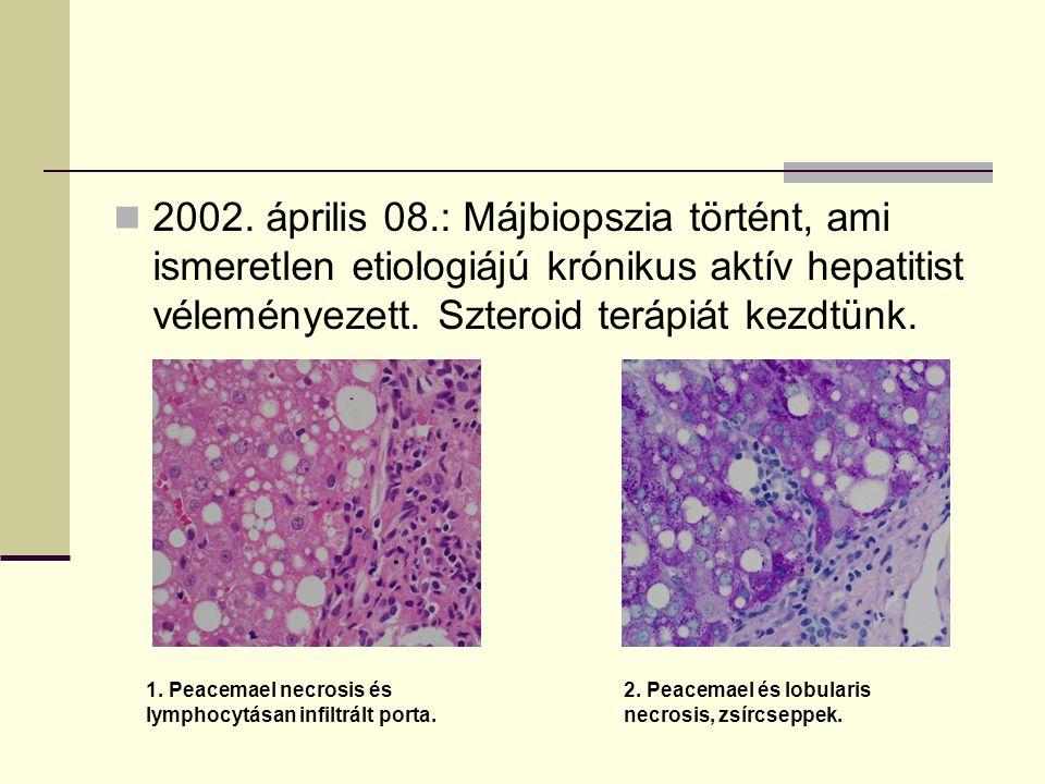 2002. április 08.: Májbiopszia történt, ami ismeretlen etiologiájú krónikus aktív hepatitist véleményezett. Szteroid terápiát kezdtünk. 1. Peacemael n
