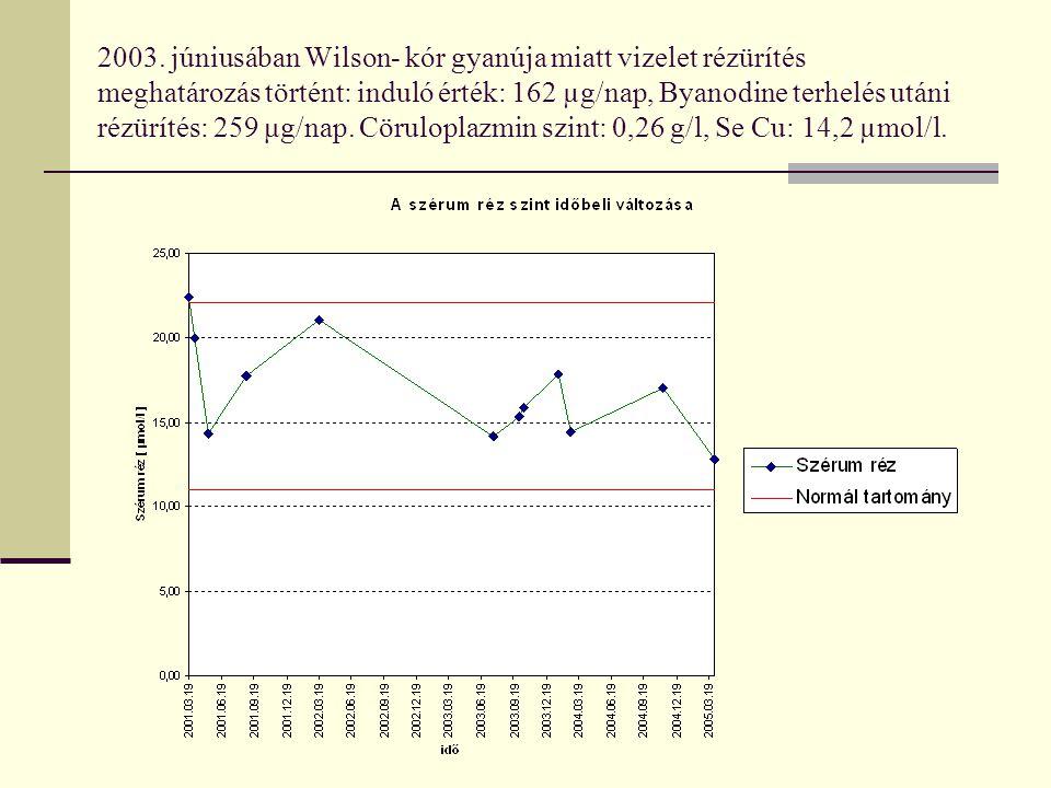 2003. júniusában Wilson- kór gyanúja miatt vizelet rézürítés meghatározás történt: induló érték: 162 µg/nap, Byanodine terhelés utáni rézürítés: 259 μ