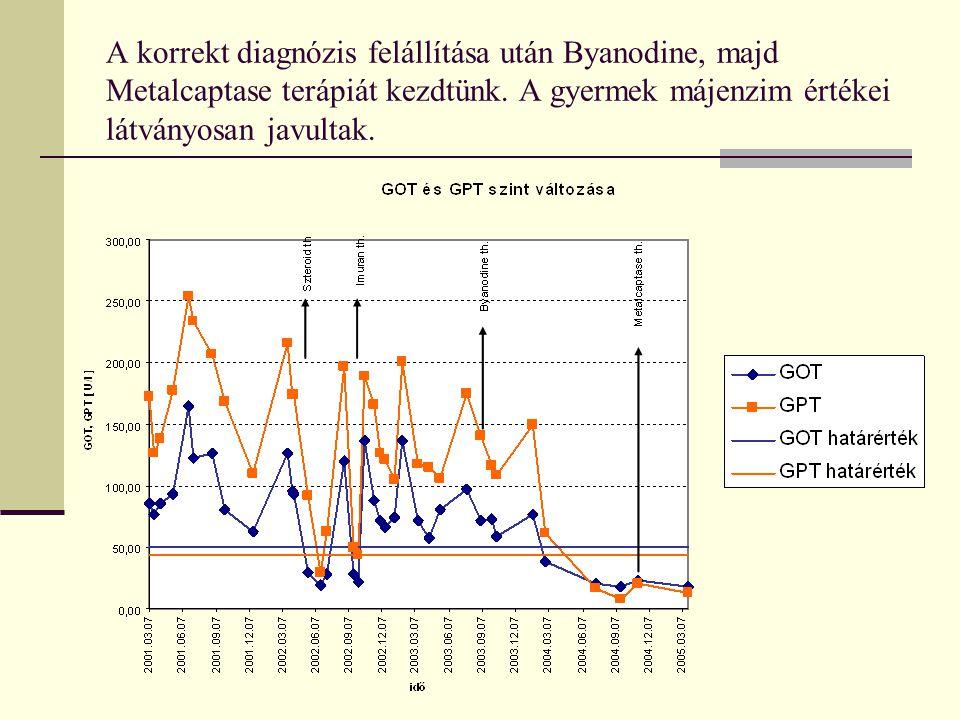 A korrekt diagnózis felállítása után Byanodine, majd Metalcaptase terápiát kezdtünk. A gyermek májenzim értékei látványosan javultak.