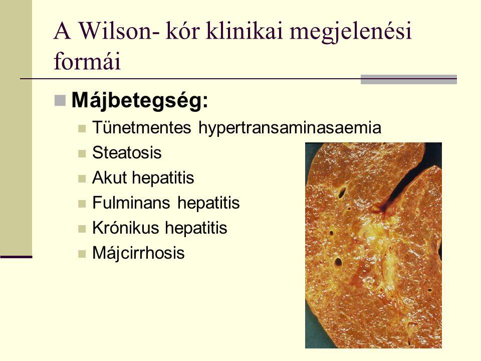 A Wilson- kór klinikai megjelenési formái Májbetegség: Tünetmentes hypertransaminasaemia Steatosis Akut hepatitis Fulminans hepatitis Krónikus hepatit