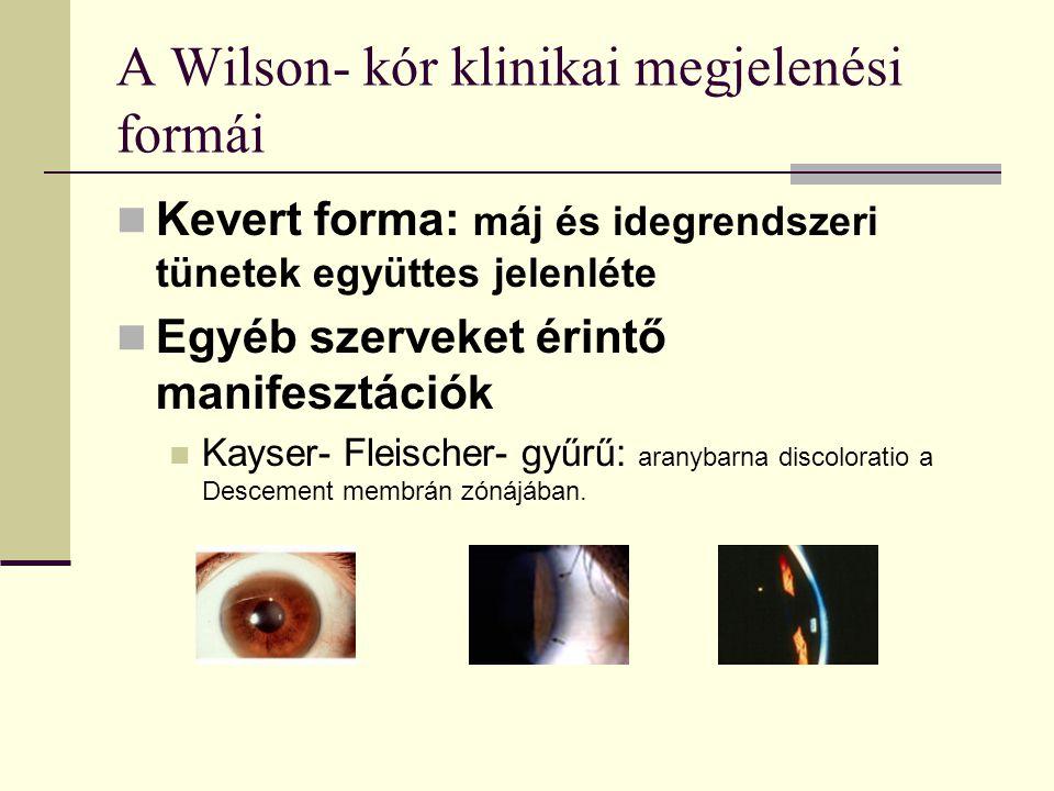 A Wilson- kór klinikai megjelenési formái Kevert forma: máj és idegrendszeri tünetek együttes jelenléte Egyéb szerveket érintő manifesztációk Kayser-