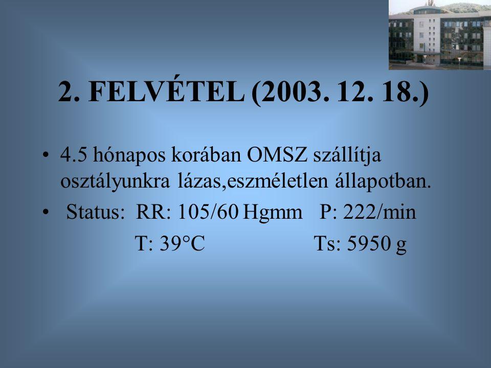 4.5 hónapos korában OMSZ szállítja osztályunkra lázas,eszméletlen állapotban. Status: RR: 105/60 Hgmm P: 222/min T: 39°C Ts: 5950 g 2. FELVÉTEL (2003.