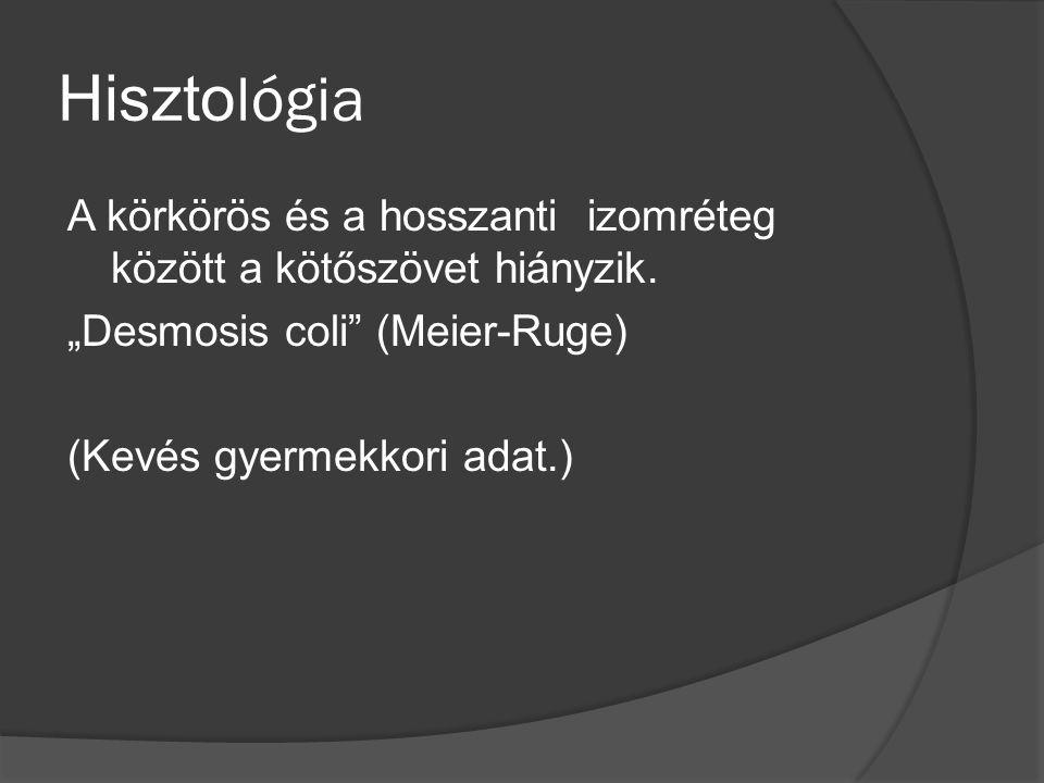 His z tol ó gia  Dolichocolon, sigma, súlyos transmuralis gyulladás  Ganglionsejtek kimutathatók