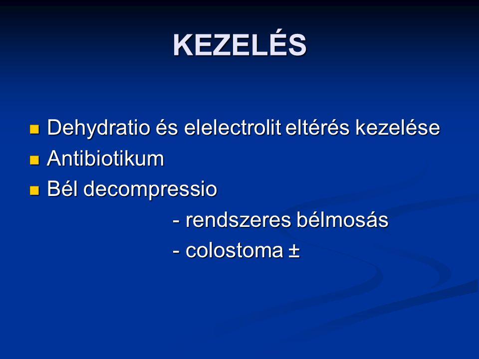 KEZELÉS Dehydratio és elelectrolit eltérés kezelése Dehydratio és elelectrolit eltérés kezelése Antibiotikum Antibiotikum Bél decompressio Bél decompr