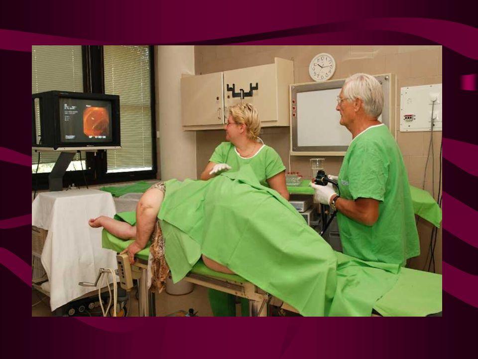 Colon polyp endoscopos és virtualis endoscopos képei