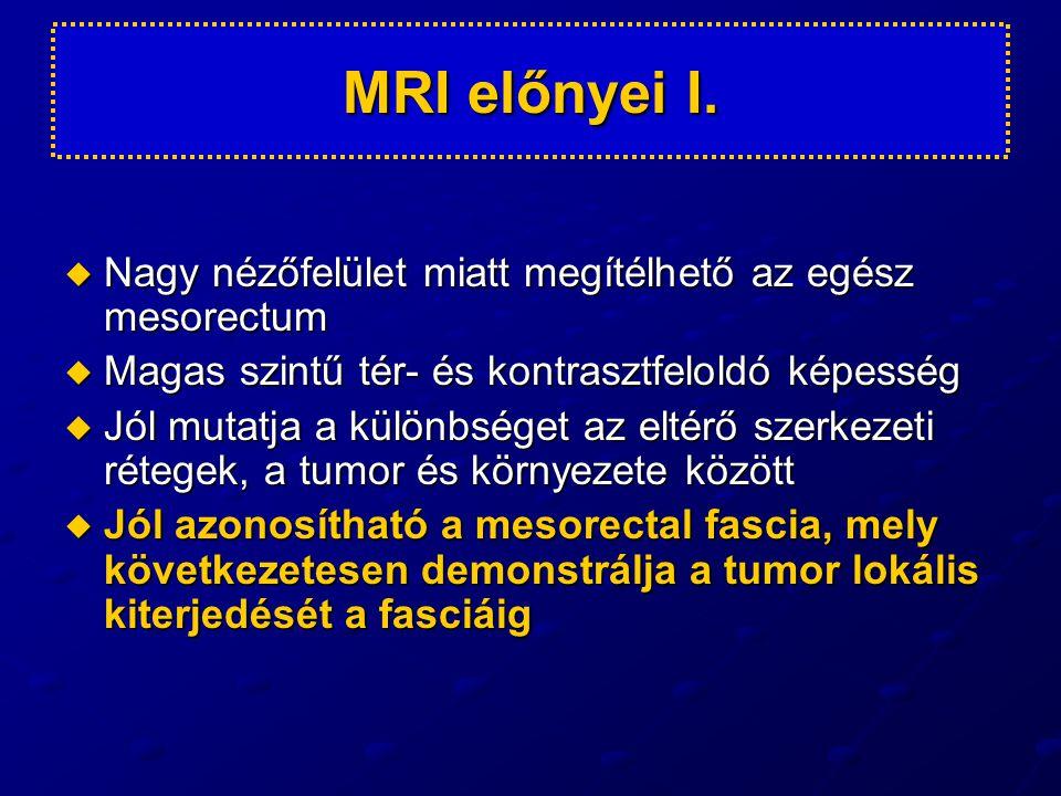 MRI előnyei II. Jól látható a gyakran egyszerre előforduló elzáródás, szűkület, falkiszélesedés.