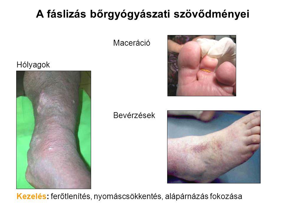 A fáslizás bőrgyógyászati szövődményei Maceráció Hólyagok Bevérzések Kezelés: ferőtlenítés, nyomáscsökkentés, alápárnázás fokozása