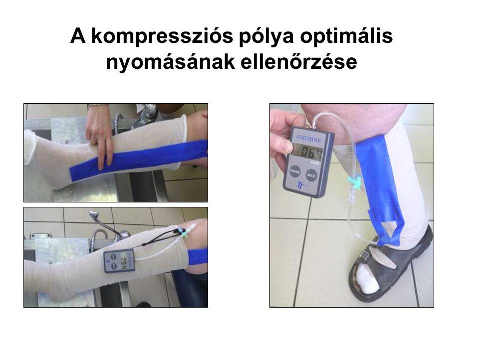 A kompressziós pólya optimális nyomásának ellenőrzése