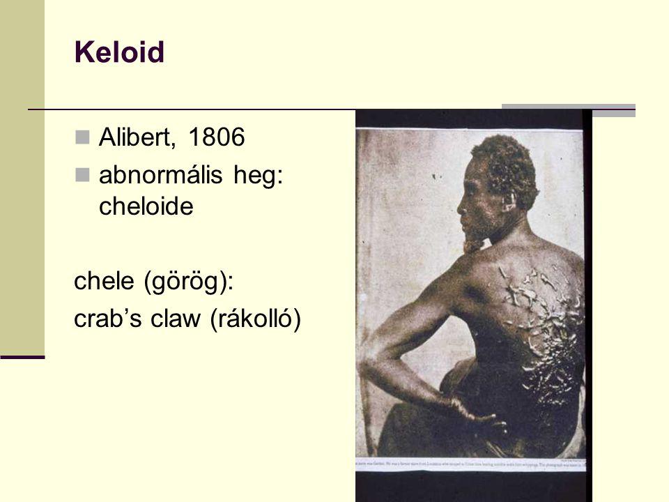 Keloid Alibert, 1806 abnormális heg: cheloide chele (görög): crab's claw (rákolló)