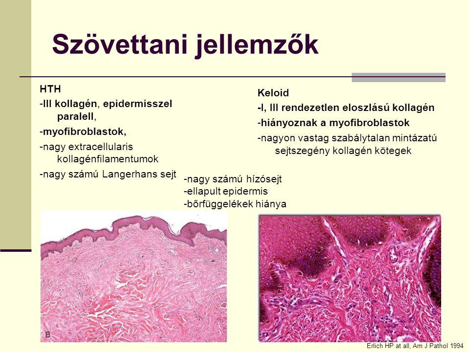 Szövettani jellemzők HTH -III kollagén, epidermisszel paralell, -myofibroblastok, -nagy extracellularis kollagénfilamentumok -nagy számú Langerhans se