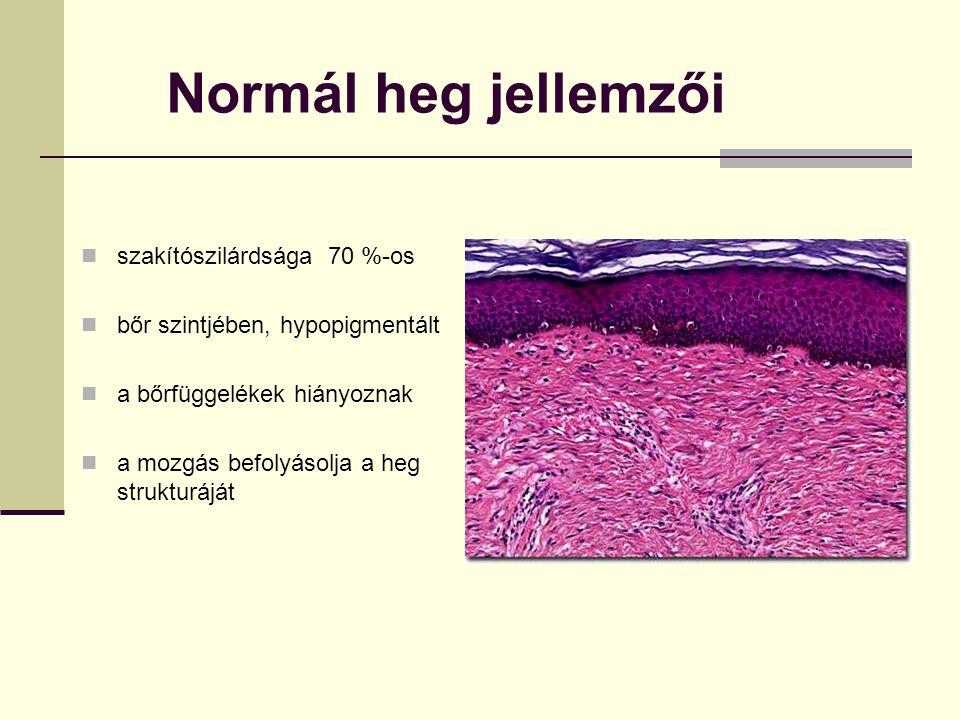 Normál heg jellemzői szakítószilárdsága 70 %-os bőr szintjében, hypopigmentált a bőrfüggelékek hiányoznak a mozgás befolyásolja a heg strukturáját