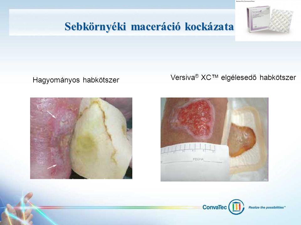 Sebkörnyéki maceráció kockázata Hagyományos habkötszer Versiva ® XC™ elgélesedő habkötszer