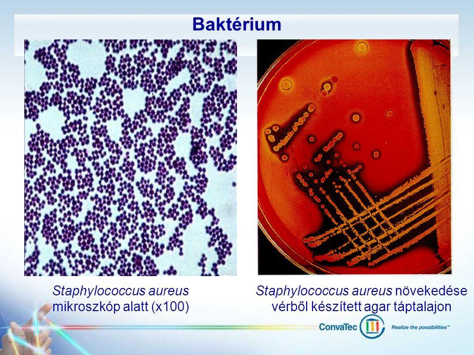 Baktérium Staphylococcus aureus növekedése vérből készített agar táptalajon Staphylococcus aureus mikroszkóp alatt (x100)