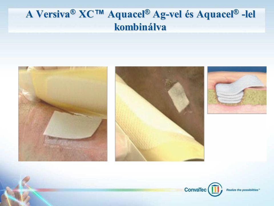 A Versiva ® XC ™ Aquacel ® Ag-vel és Aquacel ® -lel kombinálva