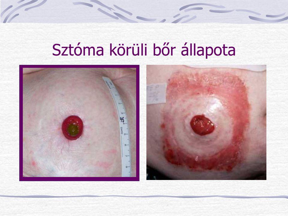 Sztóma körüli bőr állapota