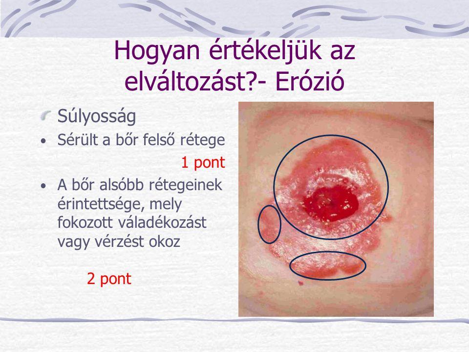 Hogyan értékeljük az elváltozást?- Erózió Súlyosság Sérült a bőr felső rétege 1 pont A bőr alsóbb rétegeinek érintettsége, mely fokozott váladékozást
