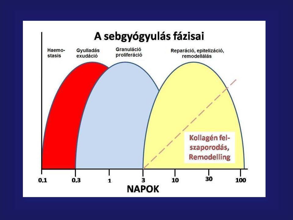 V.A.C.Therápia elve Lokalizált negativ nyomás Sebváladék – fvs.
