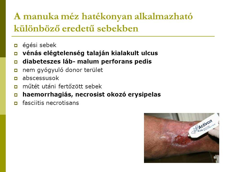 A manuka méz hatékonyan alkalmazható különböző eredetű sebekben  égési sebek  vénás elégtelenség talaján kialakult ulcus  diabeteszes láb- malum pe