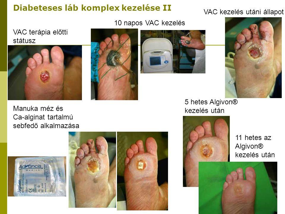 VAC terápia előtti státusz 10 napos VAC kezelés VAC kezelés utáni állapot Manuka méz és Ca-alginat tartalmú sebfedő alkalmazása 5 hetes Algivon® kezel